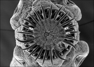 The pork tapeworm; image courtesy of Dennis Kunkel Microscopy, Inc.